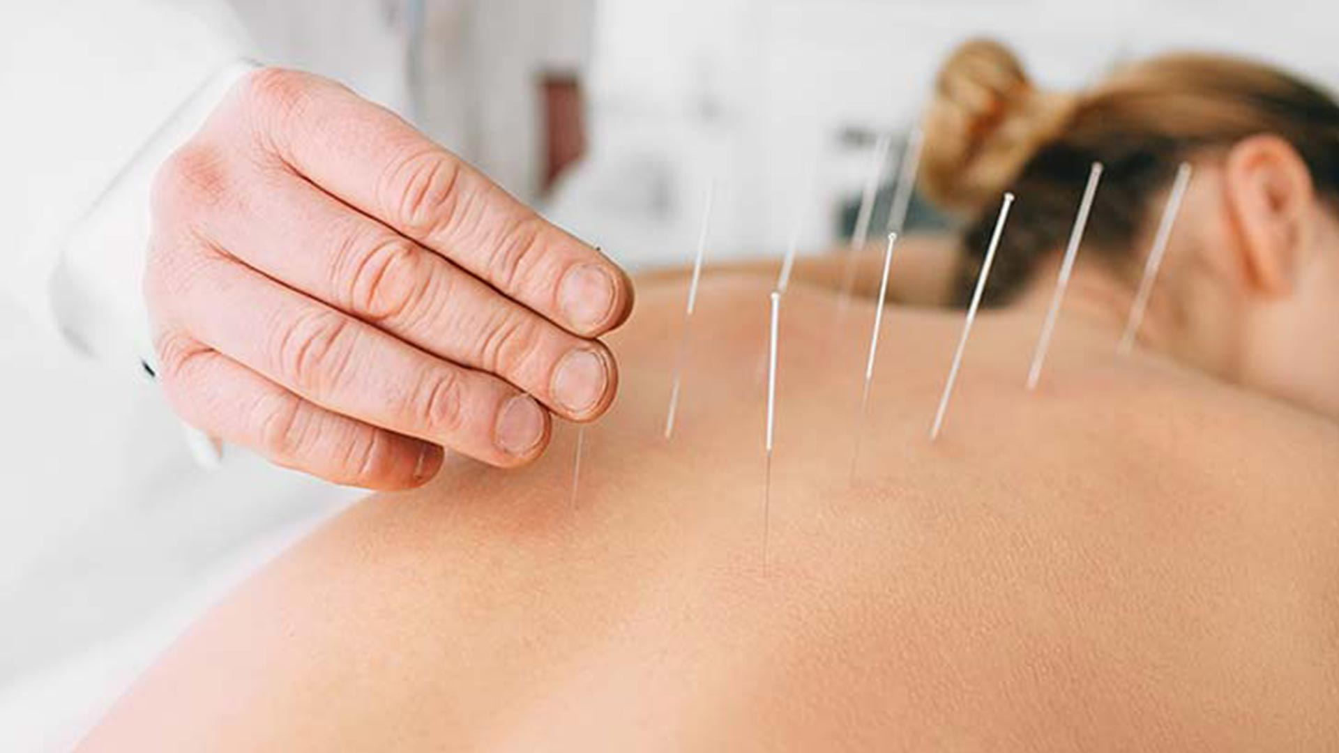 Acupuncture in York region